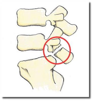 せきぐち鍼灸院|武蔵小金井|腰椎分離症