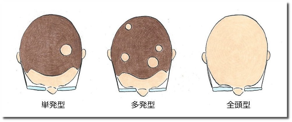 せきぐち鍼灸整体院|武蔵小金井 円形脱毛症