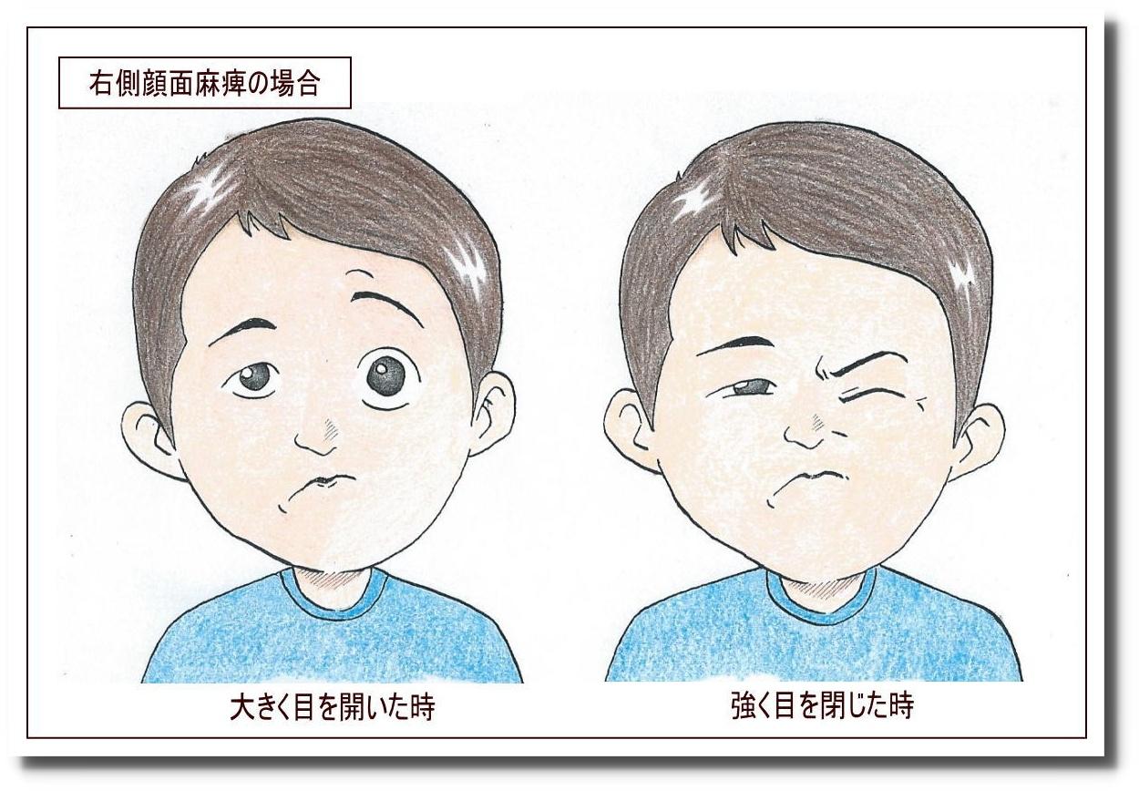 せきぐち鍼灸院|武蔵小金井|顔面神経麻痺