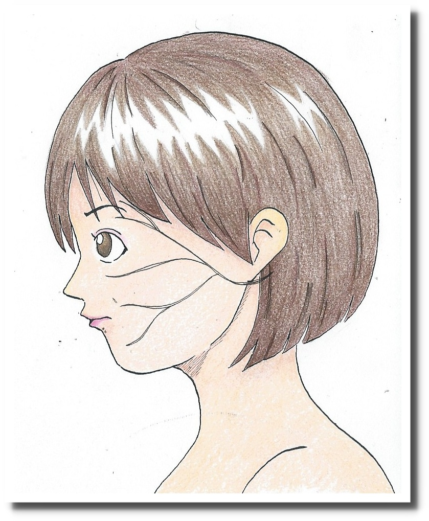 せきぐち鍼灸整体院|顔面神経麻痺の鍼灸治療