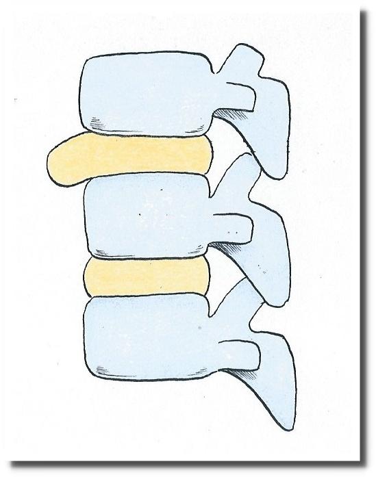 せきぐち鍼灸院|武蔵小金井|椎間板ヘルニア
