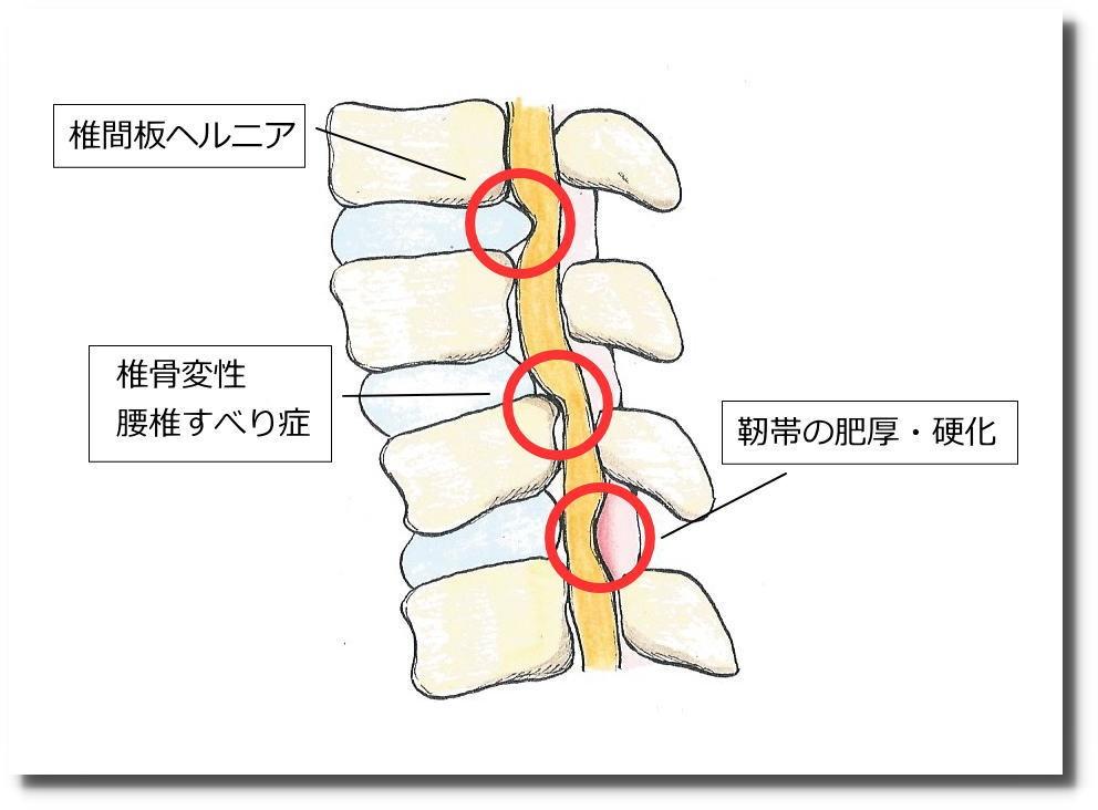 せきぐち鍼灸院|武蔵小金井|脊柱管狭窄症