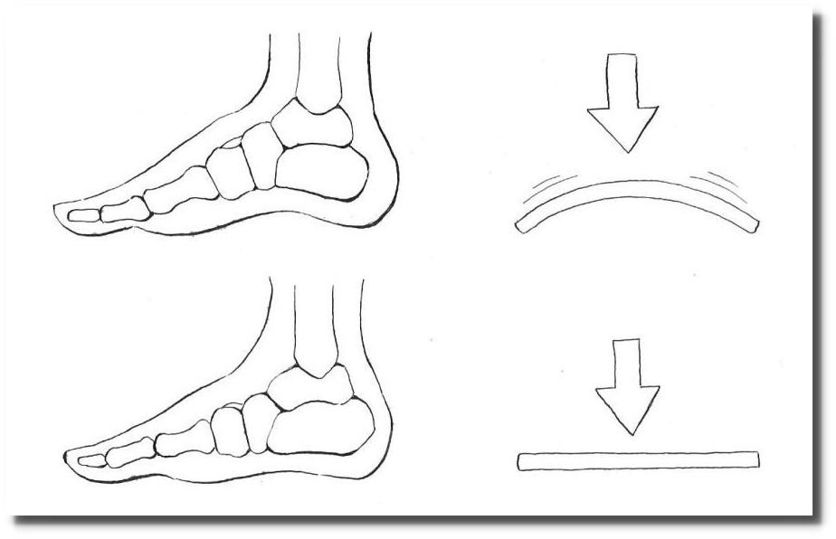 せきぐち鍼灸院|武蔵小金井|足底腱膜炎