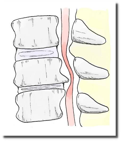 せきぐち鍼灸院|武蔵小金井|頚椎症