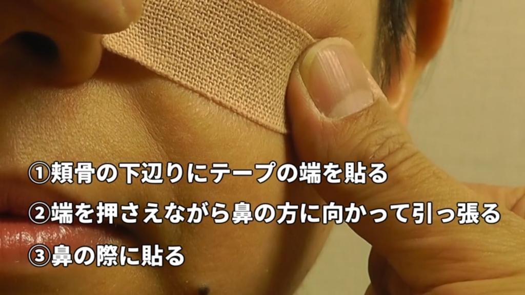 鼻づまり解消法|せきぐち鍼灸院【武蔵小金井】