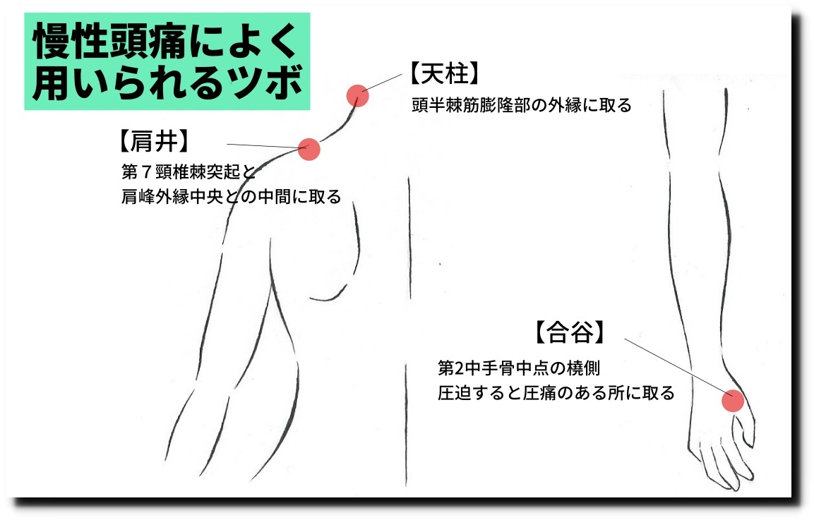 頭痛の鍼灸治療に用いられるツボ|せきぐち鍼灸院【武蔵小金井】